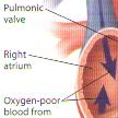 Understanding Heart Valve Surgery- mini thumb
